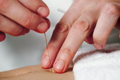 Working hands of acupuncture Stock Photos