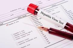 World hepatitis day concept. Stock Photos