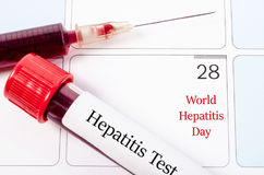 World hepatitis day concept. Royalty Free Stock Image