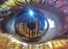 World inside your eye stock photos