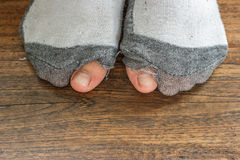 Worn out socks with a hole and toes. Royalty Free Stock Photo