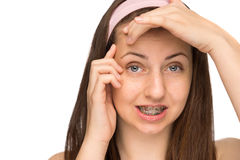 Worried girl with braces squeezing pimple isolated Stock Photo