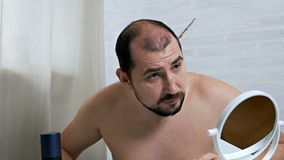 Worrying about hair loss.A balding man in front of a mirror takes care of his hair, uses a means for hair growth in case