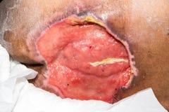 wound Royaltyfri Bild