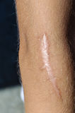 Wound arm scar Royalty Free Stock Photography
