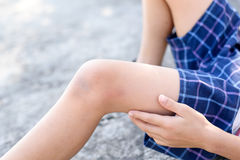 Wound on boy knee after got slip accident. Selective focust at Wound on children knee after got slip accident royalty free stock photos