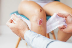 Wound cleansing process in clinic Royalty Free Stock Images