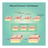 Wound closure techniques. A wound is a type of injury which happens relatively quickly in which skin is torn, cut, or punctured an open wound, or where blunt Stock Photography