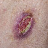 Basal Cell Carcinoma. Wound dehiscence - open wound from unsuccessful medical stitches Stock Photography