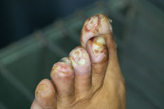 Wound of diabetic foot. Diabetic foot and infected wound royalty free stock images