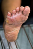 Wound of diabetic foot Royalty Free Stock Photo