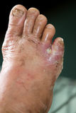Wound of diabetic foot. Diabetic foot and infected wound Royalty Free Stock Photography
