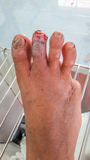 Wound of diabetic foot. Infected wound of diabetic foot stock photography