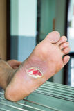 Wound of diabetic foot stock photography