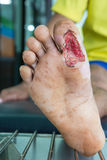 Wound of diabetic foot Stock Images