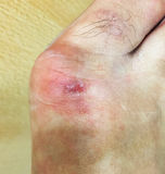 Wound at foot Royalty Free Stock Photos