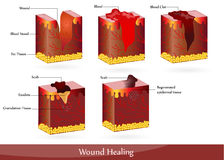 Wound healing. The process of wound healing. Illustration showing skin after injury, appears blood, then blood clot, then scab Stock Photos