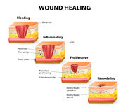 Wound healing Royalty Free Stock Image