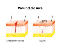 Wound healing process with help surgical suture. Royalty Free Stock Photo