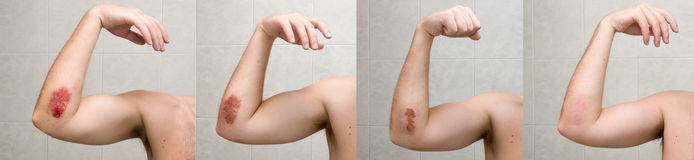 Wound healing process XXL. Painful bruise of elbow shot during three weeks Stock Photos