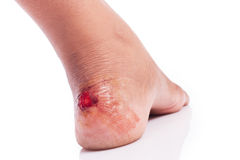 Wound at heel. On white background Stock Image