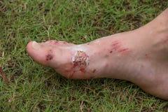 Wound on his leg man Stock Photos