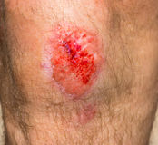 Wound on a knee Royalty Free Stock Images