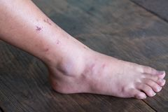 Wound leg, Diabetic foot syndrome. Gangrene of the leg stock photos