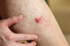 The wound on man's leg. Close up the wound on man's leg royalty free stock photos