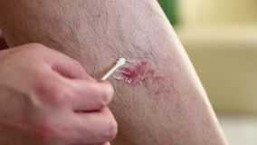 The wound on man's leg stock video
