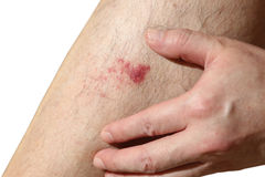 The wound on man's leg Royalty Free Stock Photo