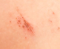 A wound on the skin. Royalty Free Stock Photo