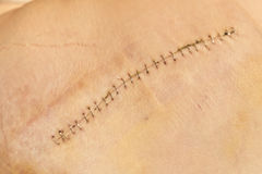 A wound on the skin. Long scar with staples fasteners and clamp on leg Stock Image