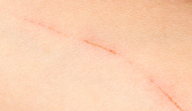 A wound on the skin. A photo Royalty Free Stock Image