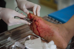 The wound stitched in the foot by doctors in the hospital. Accidental wounds.  stock photography
