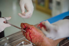 The wound stitched in the foot by doctors in the hospital. Accidental wounds.  stock photos
