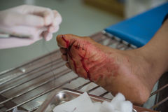 The wound stitched in the foot by doctors in the hospital. Accidental wounds.  stock photo
