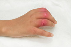 Wound and treatment,Hand Injury. Hand Injury after car accident severed closed fracture 2-4 finger, Patient demonstrating surgery wound and deformity stock photos