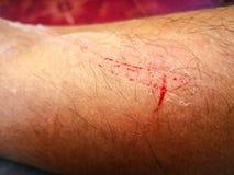 wounded стоковые изображения