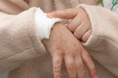 Wounded hand. Of a little girl Royalty Free Stock Photo