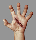 Wounded hand Stock Photography