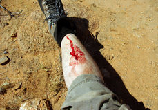 Wounded leg. Man in expedition with a wounded leg Stock Images