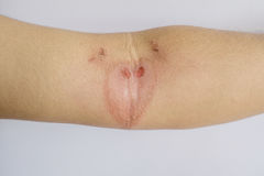 Wounds on arm caused by poisonous insects. Close up wounds on arm caused by poisonous insects stock photography
