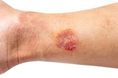 Wounds caused by scalding hot from exhaust tube of a motorcycle.  royalty free stock images