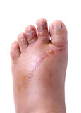 Wounds on women foot. Closeup wounds on women foot Royalty Free Stock Photography