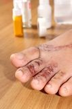 Wounds on women foot. Closeup wounds on women foot Royalty Free Stock Photos