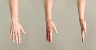 Wounds on wrist Royalty Free Stock Image