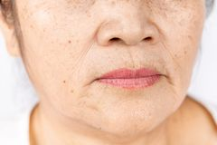 Close up skin wrinkle and freckles of old asian woman face. Wrinkle freckles and skin line on close up elderly asian woman face 60-70 years old, healthy skin royalty free stock photo