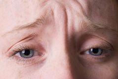 Wrinkled brow Stock Images