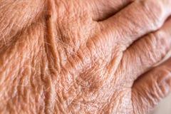 Wrinkled skin on hand Stock Image